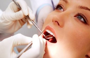Teeth Cleaning Service