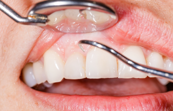 Busting the Myths About Dental Scaling in Allen, TX Allen, TX